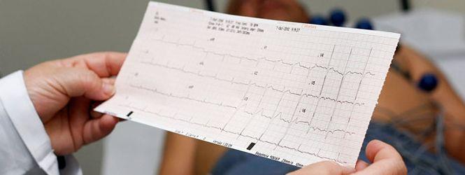 https://ultraradrio.com.br/wp-content/uploads/2017/06/ecocardiograma.jpg